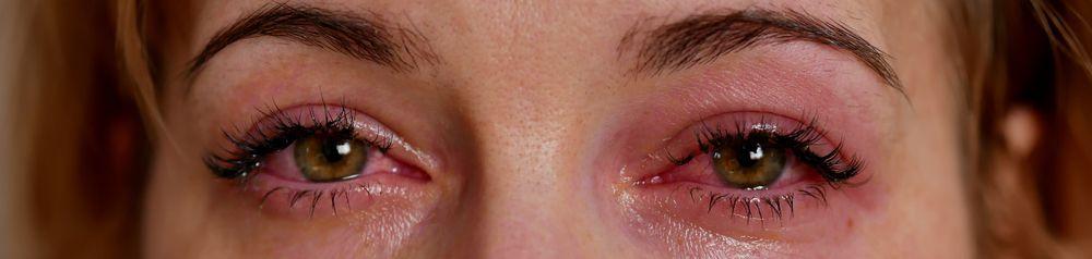 Symptoms Of Suboxone Withdrawal